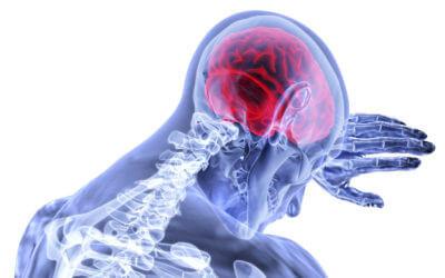 Brain underFire